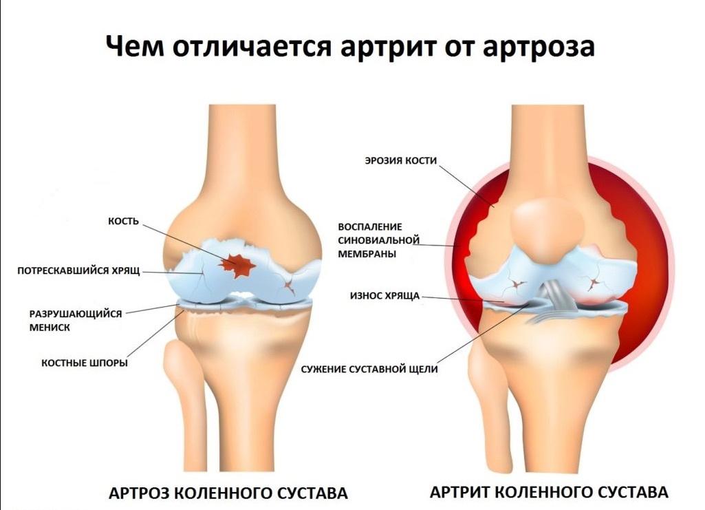 Ревматически артрит как лечить